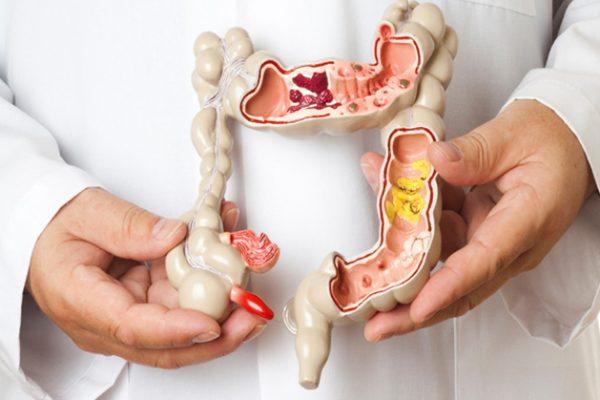 Rastreio eficaz na prevenção do cancro de intestino