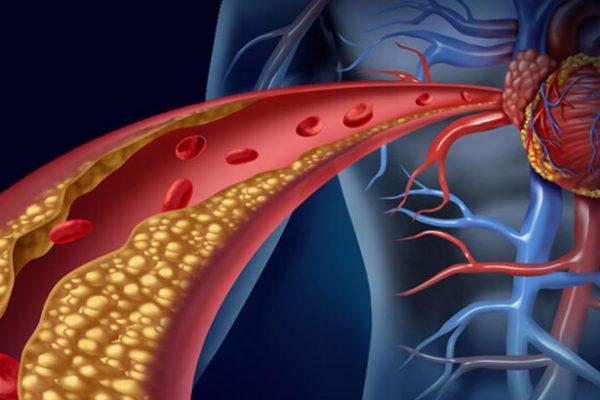 Colesterol, o bom e o mau