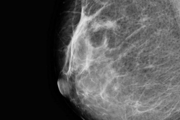 Mamografia com ou sem proteção?