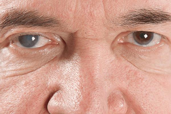 Cirurgia de Catarata: Cuidados a ter