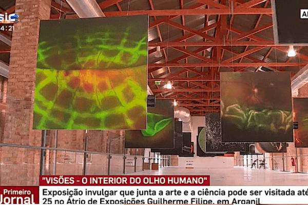 Exposição mostra o interior do olho humano – SIC – Primeiro Jornal