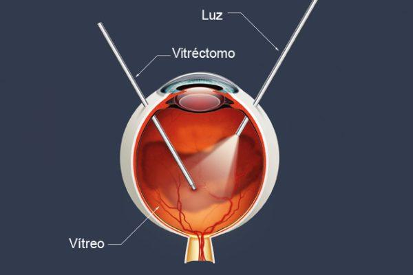 A vitrectomia explicada