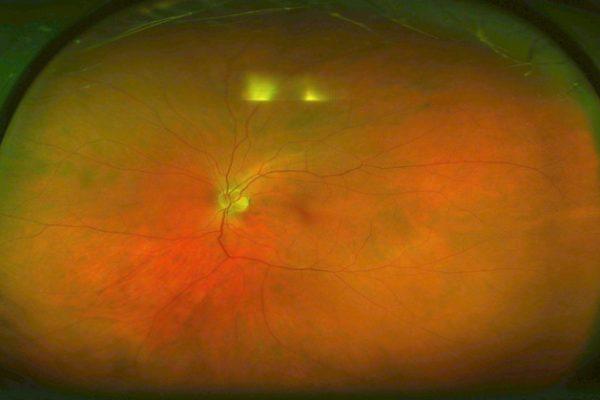 Oftalmologia reforça equipamento de diagnóstico