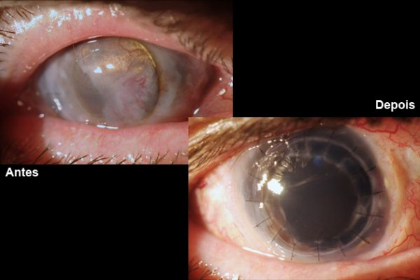 Cirurgia inédita faz translocação de olhos