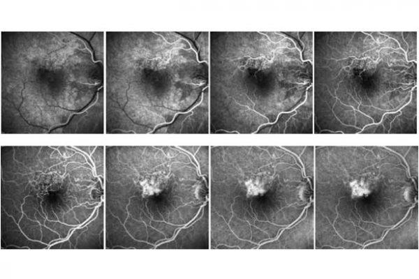 O que é isso da angiografia à retina?