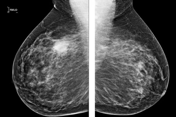 Mamografia ou ecografia?