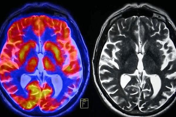 Como espreitar o que se passa no cérebro?