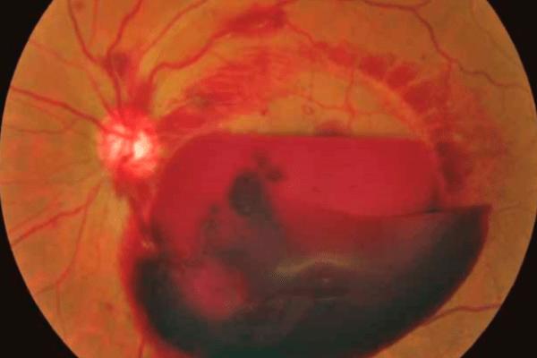 Cegueira súbita é possível?