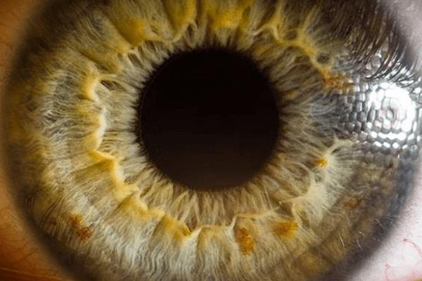 Quando a retina descola