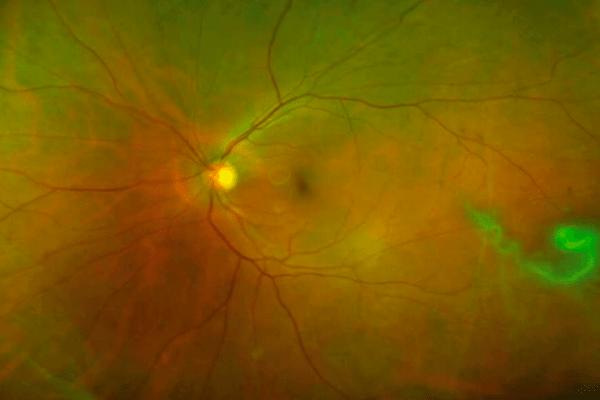 Descolamento de vítreo ou de retina, quais as diferenças?
