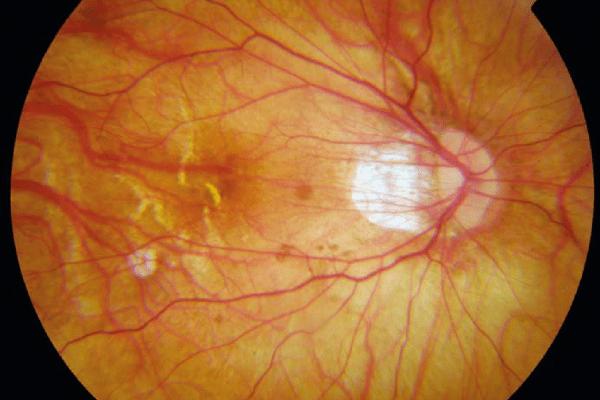 O lado oculto da miopia