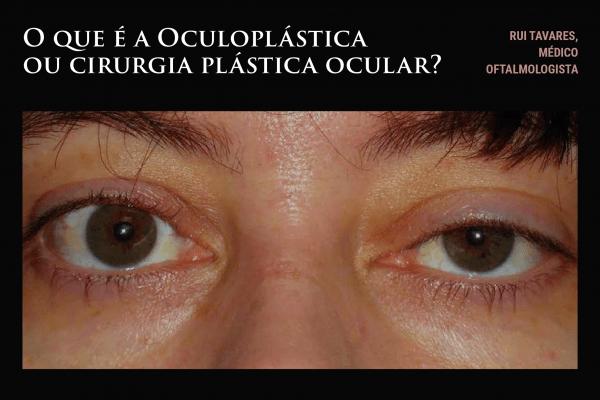 O que é a Oculoplástica ou cirurgia plástica ocular?